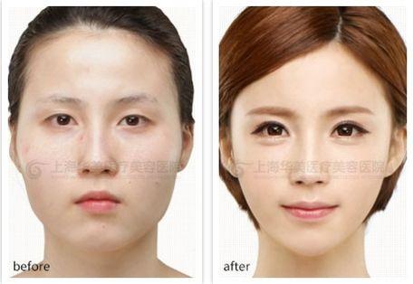 韩式mx埋线双眼皮,韩式三点定位双眼皮